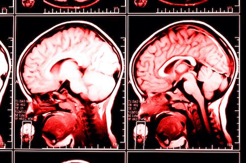brain injury scan for a brain injury lawyer