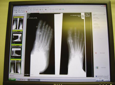 Only a Xray can determine if you're injured foot is broken or just bruised.