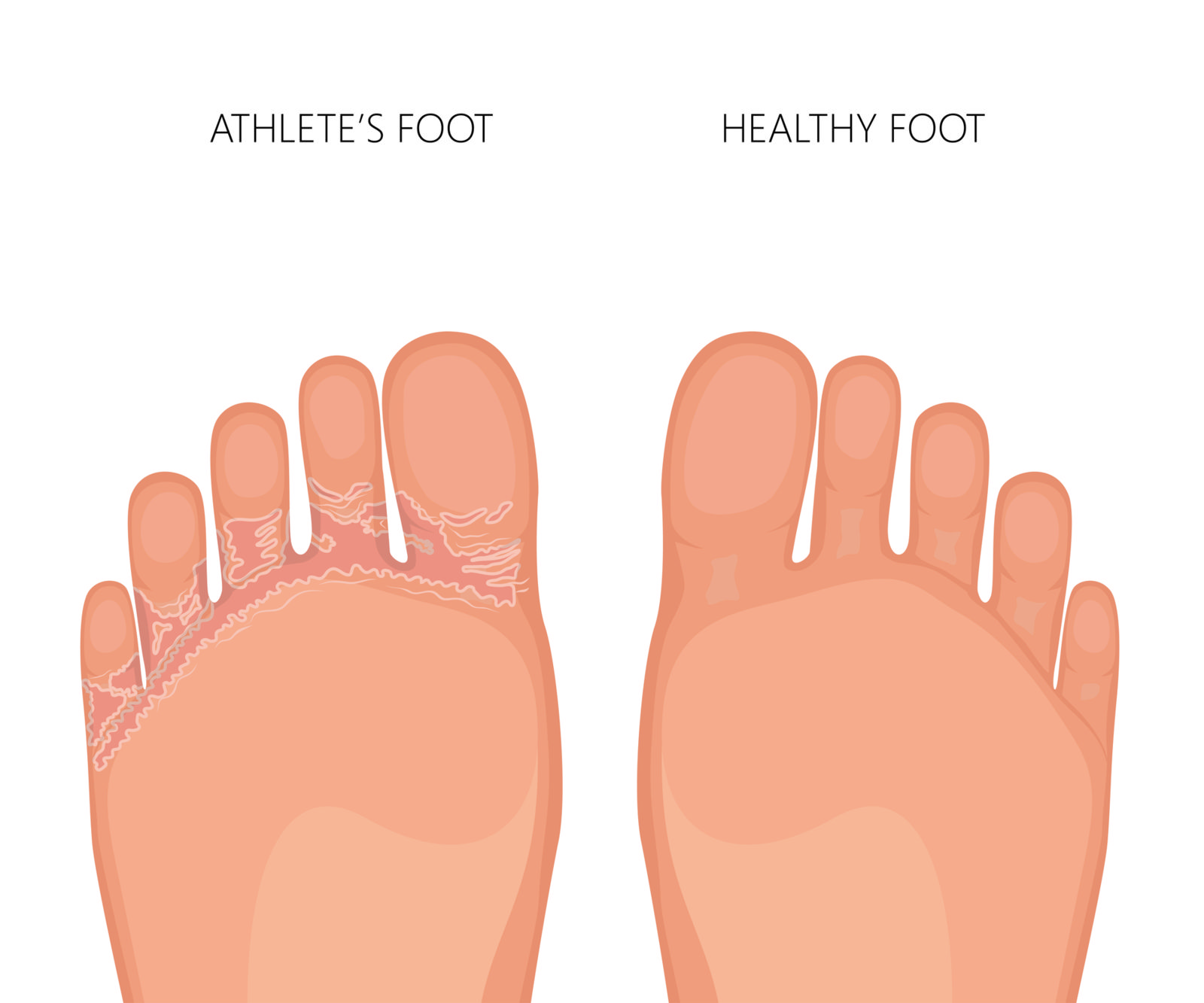 Athlete's foot is just one infection you need to look for on your daily diabetic foot checks