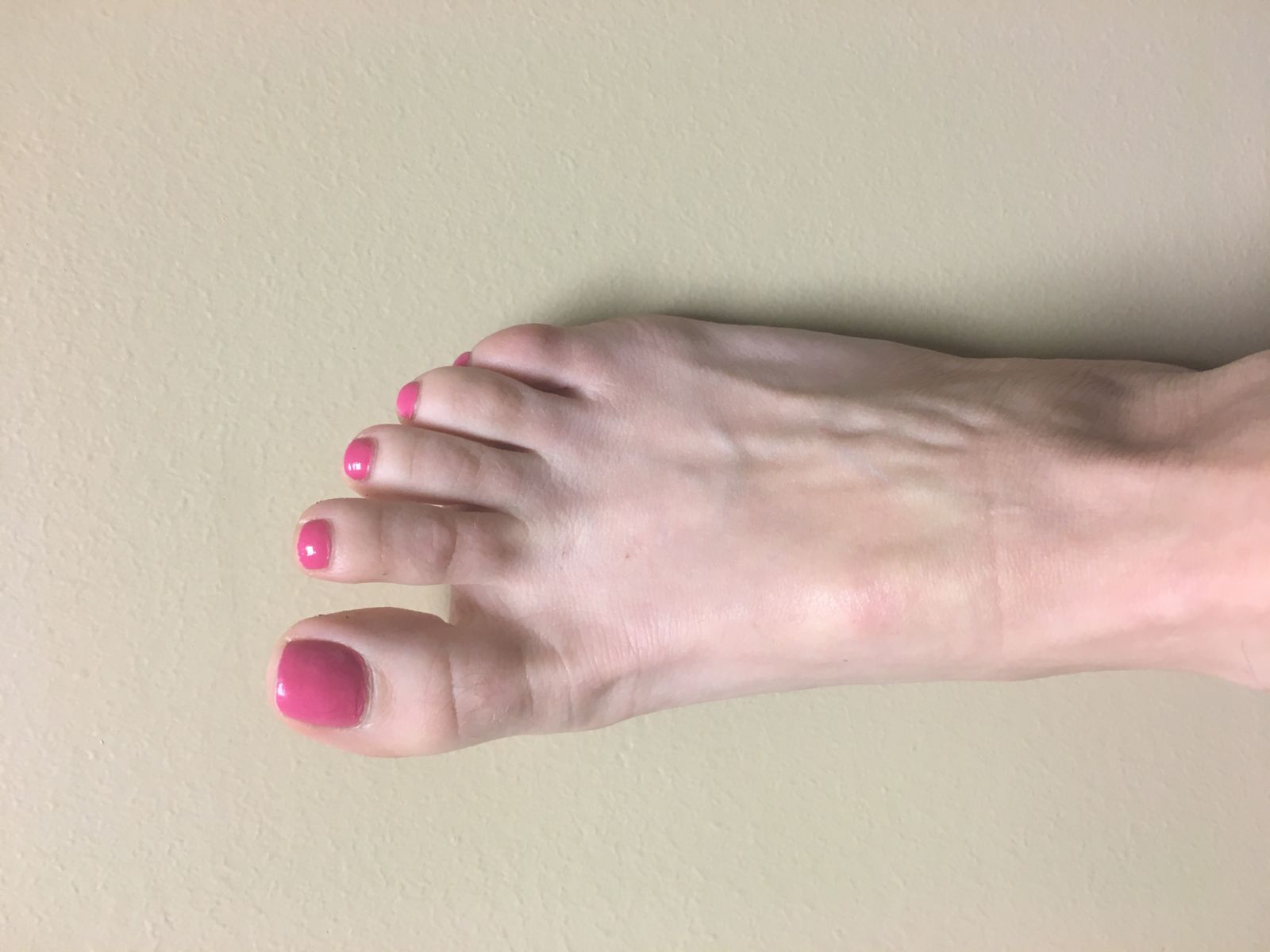 Even a small red mark in the middle of your foot is cause for concern when you have diabetes!