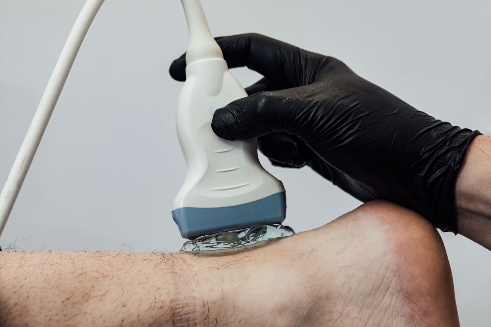 Houston podiatrist performs diagnostic ultrasound to diagnose Achilles tendonitis