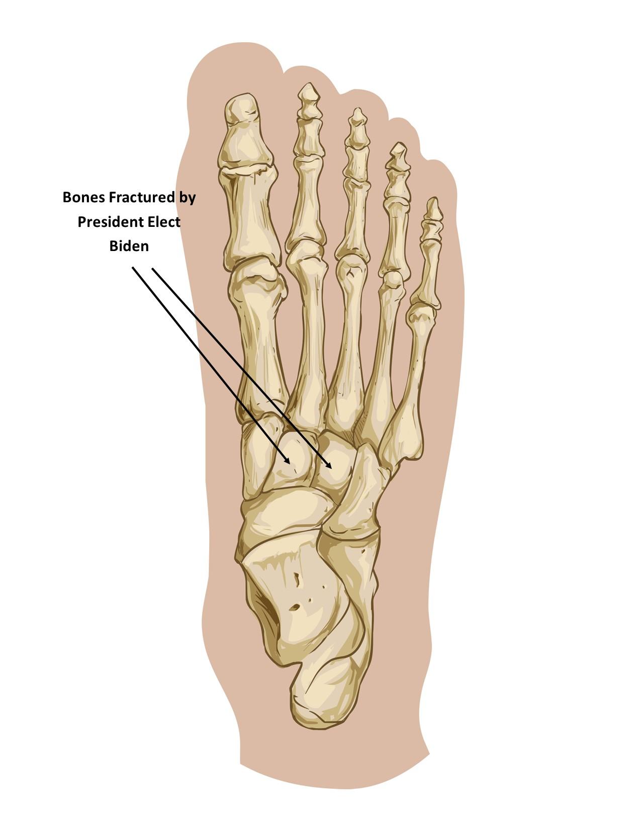 Houston podiatrist discusses President Elect Biden fracturing his foot