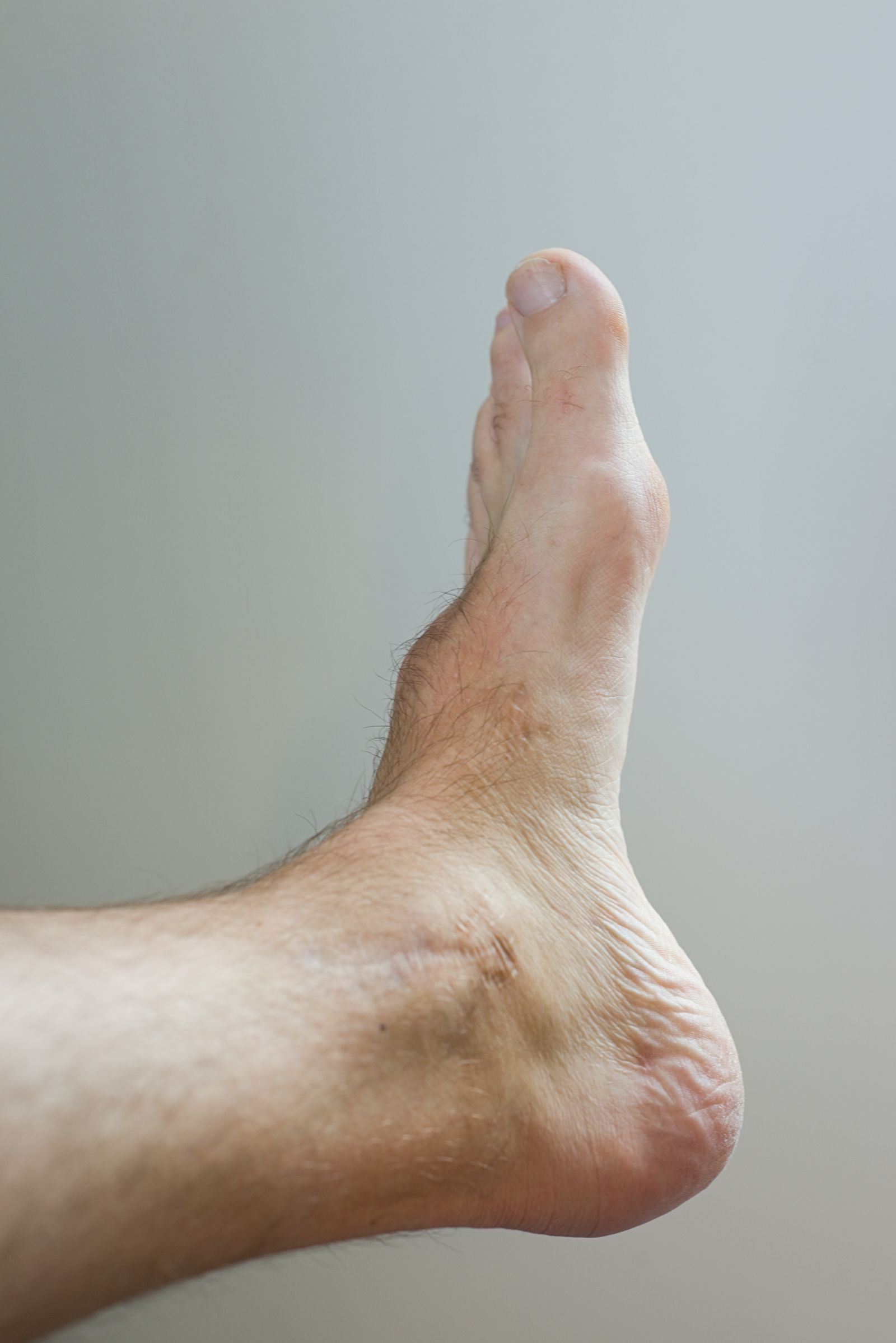 Houston podiatrist discusses bump on the top of your foot caused by bone spurs and ganglion cyst