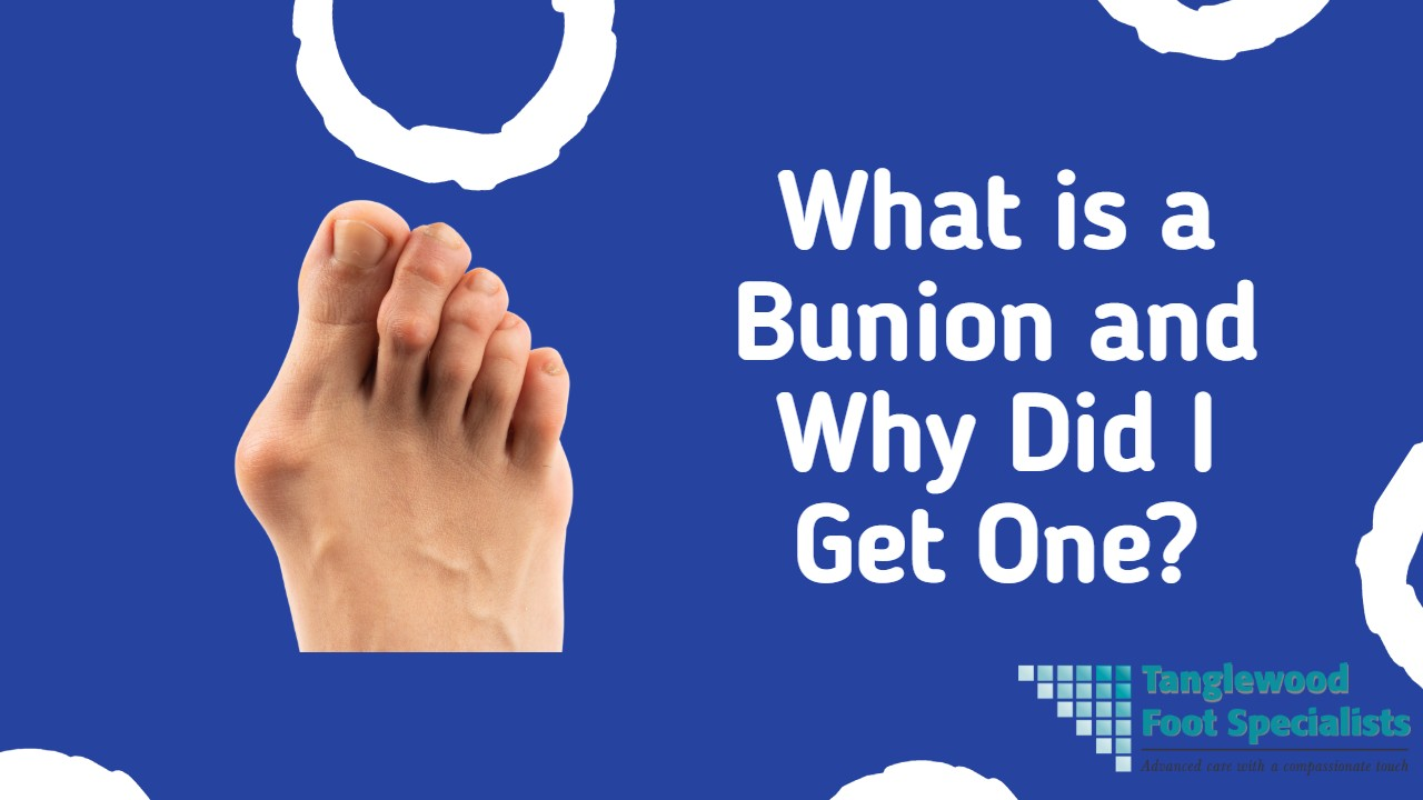 Houston podiatrist discusses what a bunion is and why you can get one