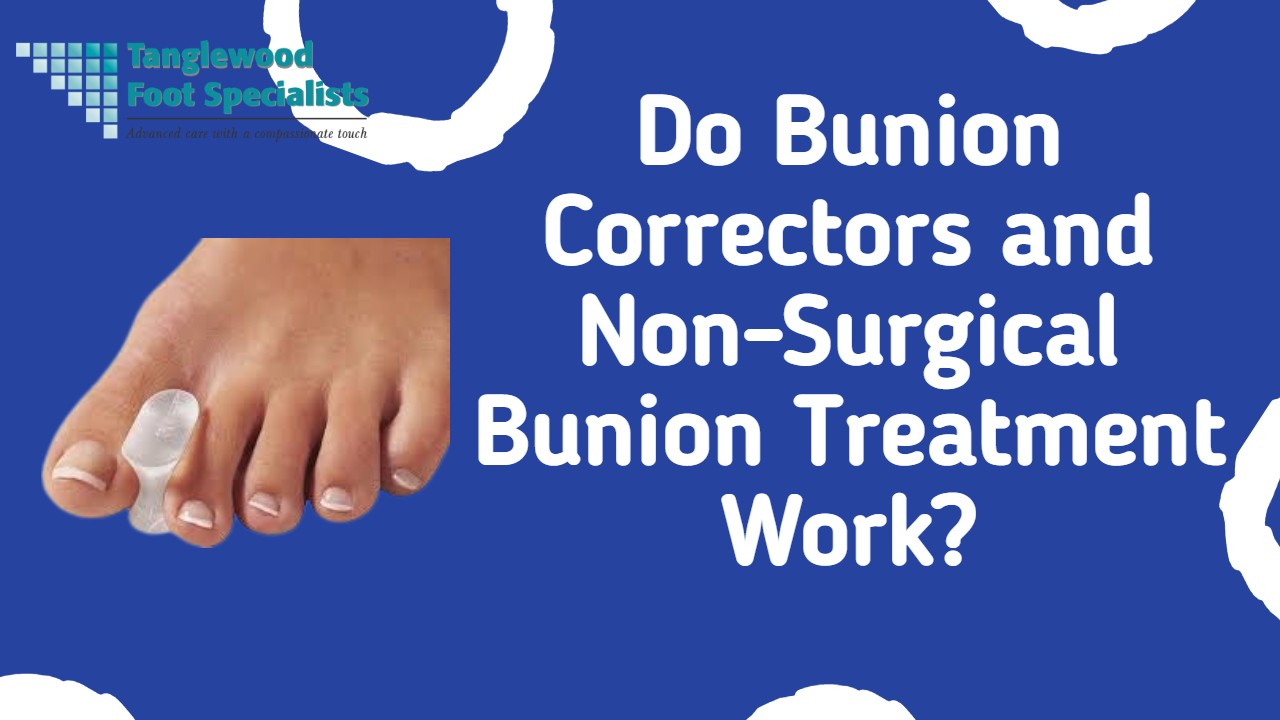 Houston podiatrist treats bunions with non-surgical methods