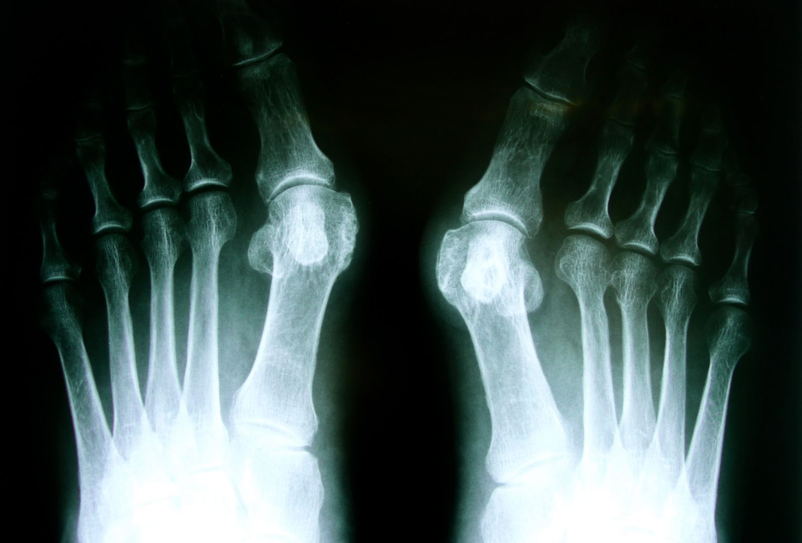 Houston podiatrist uses digital x-ray to diagnose bunions