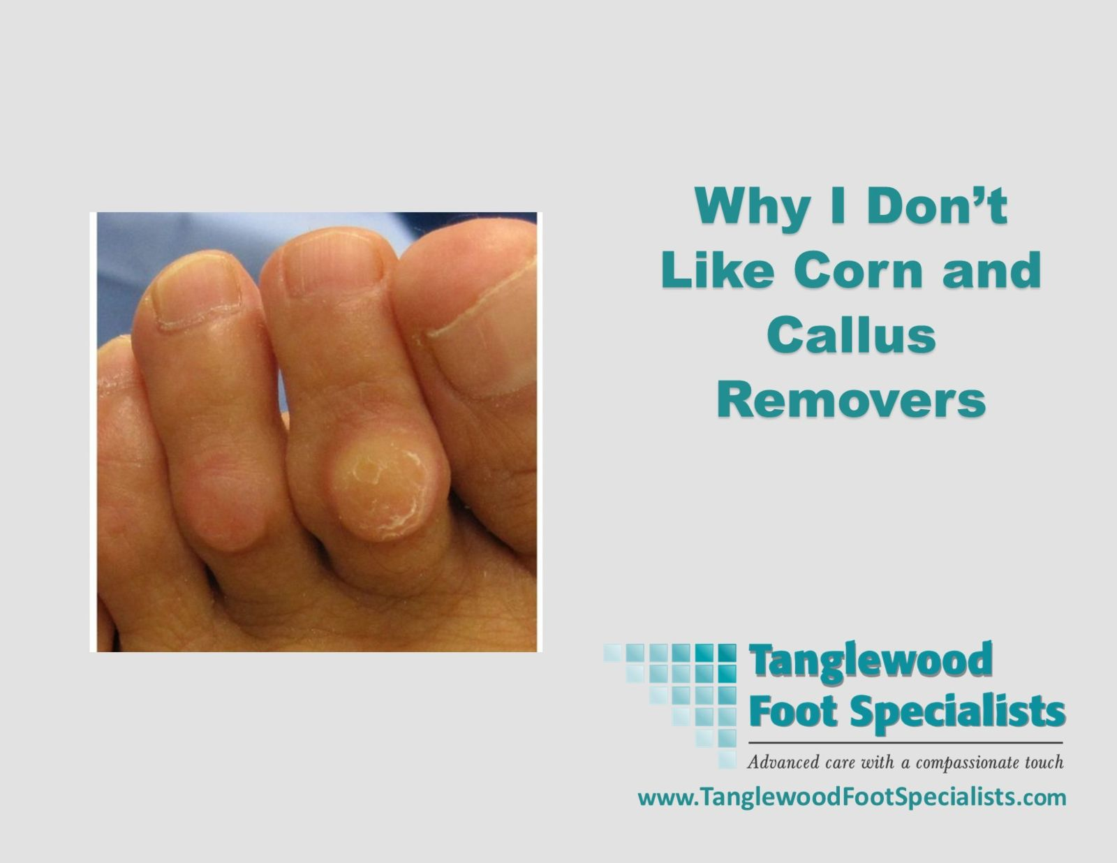 Houston podiatrist discusses Corn and Callus removers