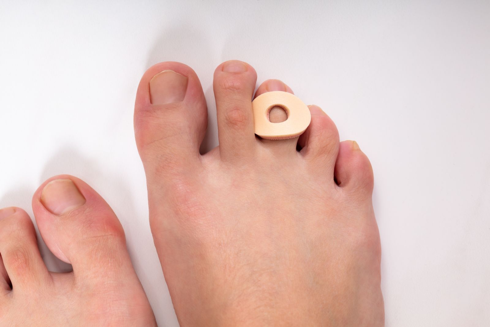 Houston podiatrist recommends non-medicated corn pads to treat toe pain