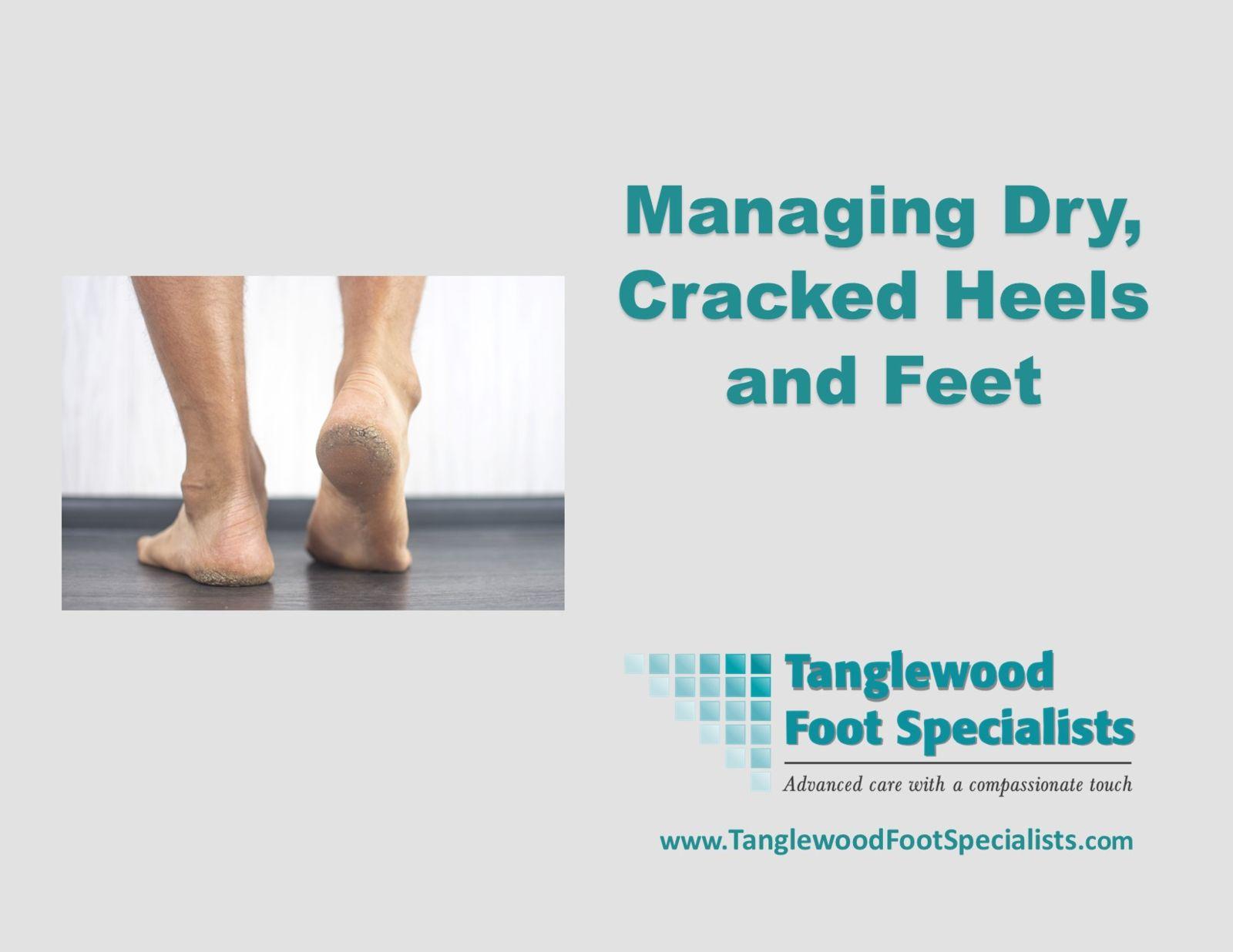 Houston podiatrist treating dry cracked feet