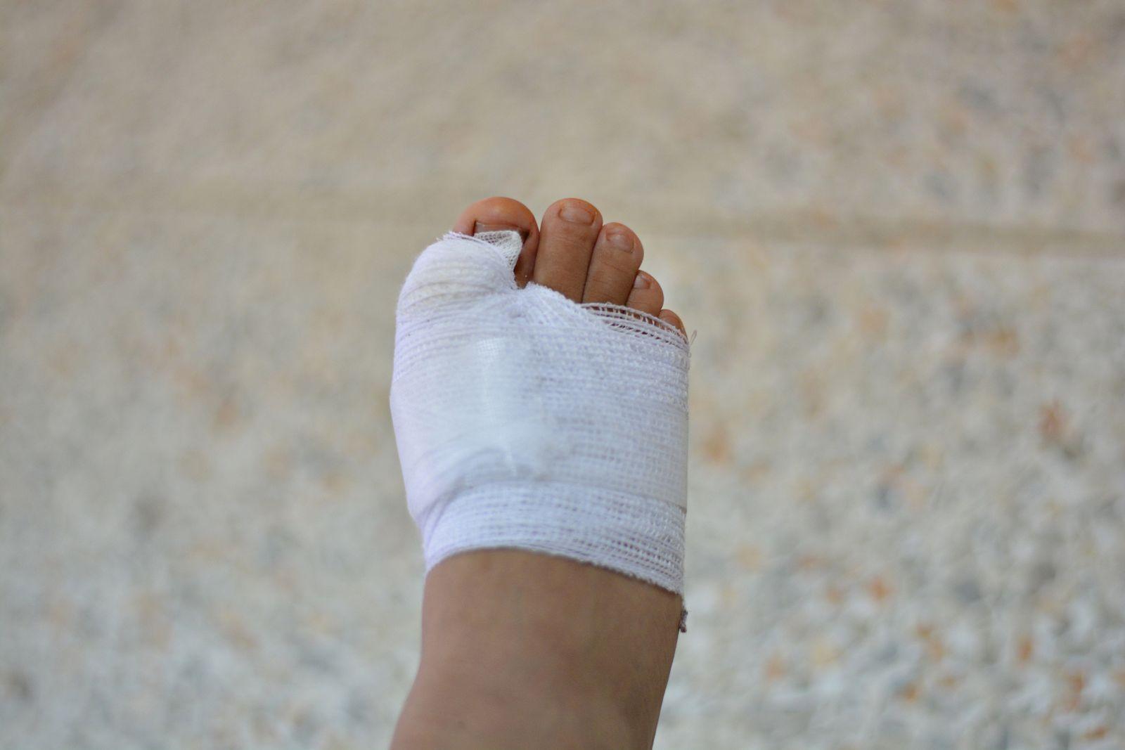 Houston podiatrist and foot surgeon considers surgery a last resort