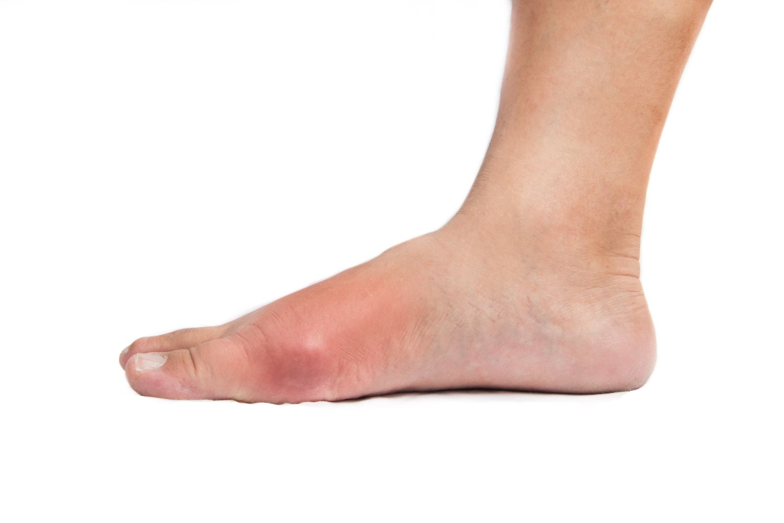 Houston podiatrist treats red, hot, and swollen joint from gout