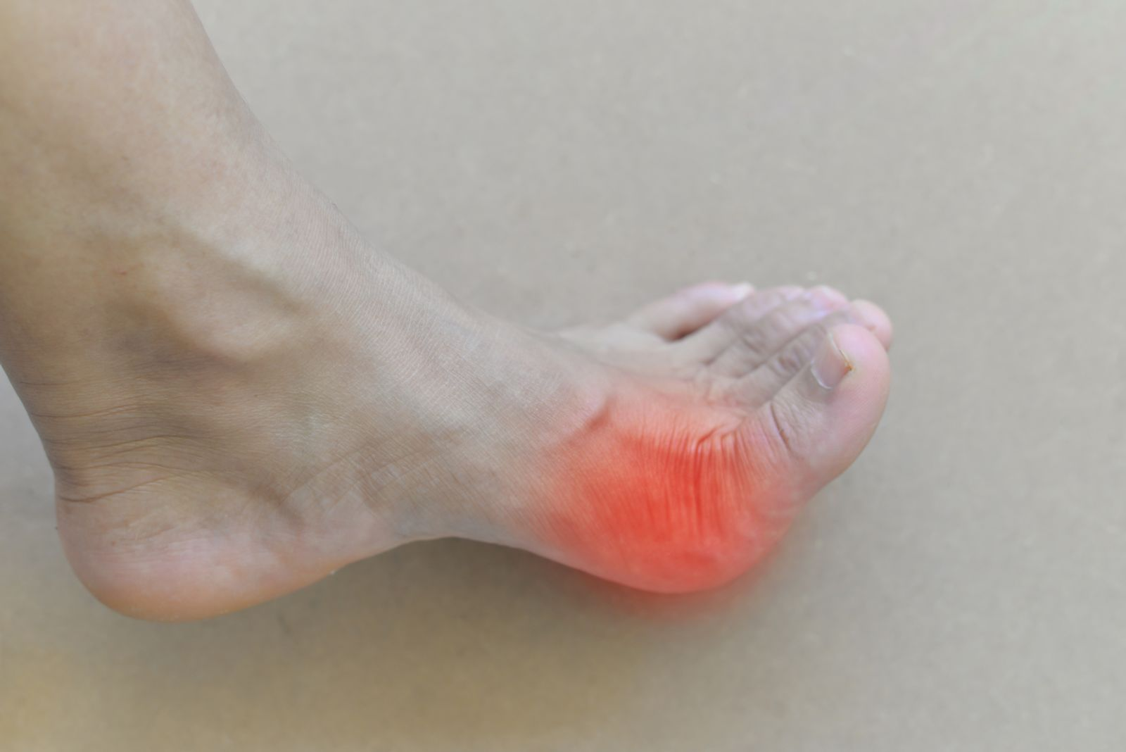Houston podiatrist treats gout attacks in the foot
