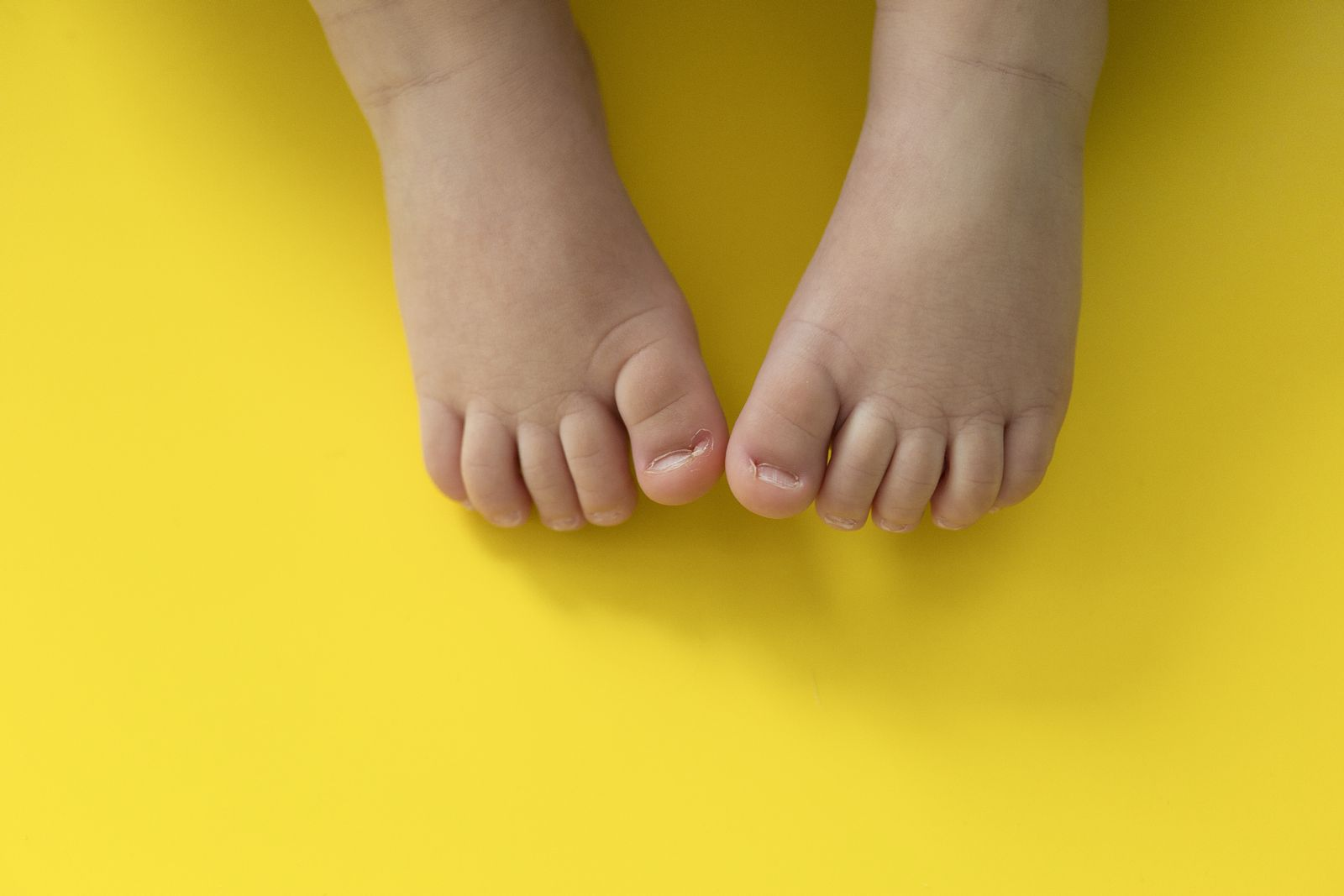 Protect babies and kids feet from ingrown toenails with proper trimming