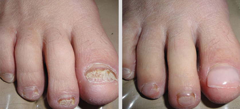 Keryflex restoration for damaged toenails available at Tanglewood Foot Specialists
