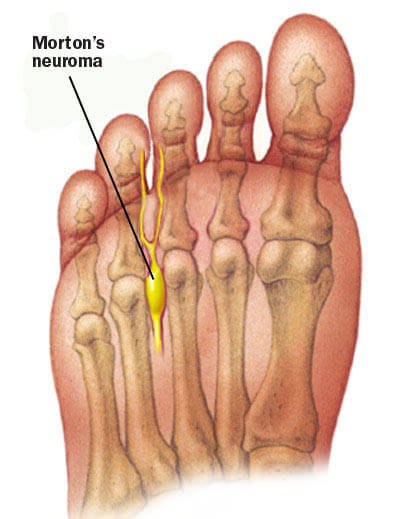 houston morton's neuroma causes ball of foot pain