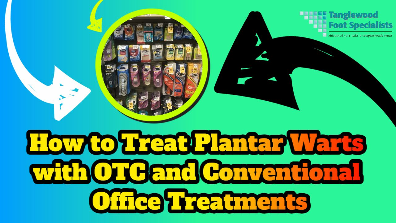 Houston podiatrist discusses using OTC treatments and conventional office treatments for plantar warts
