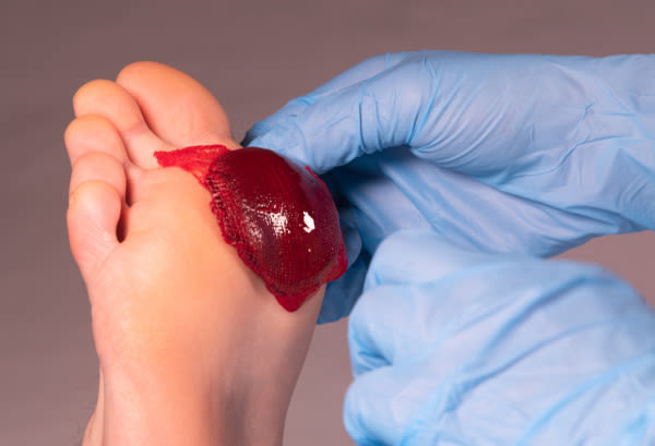RedDress Actigraft used to treat diabetic foot ulcers by Houston podiatrist