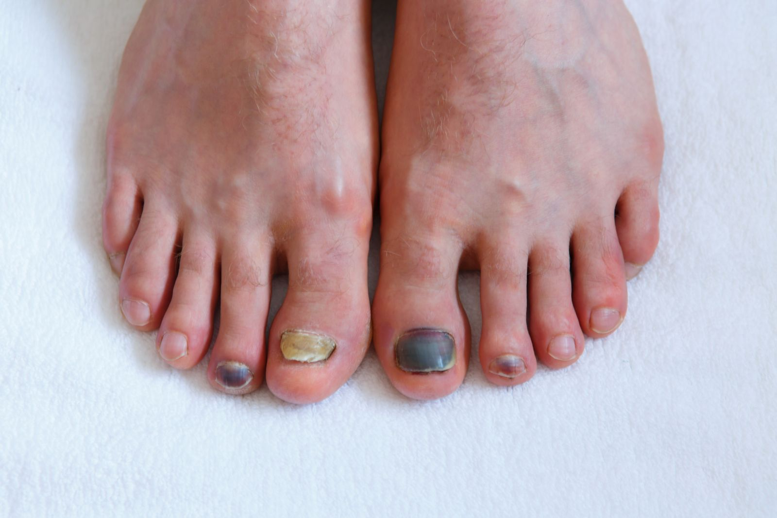 A Houston podiatrist can help protect runner's toenails