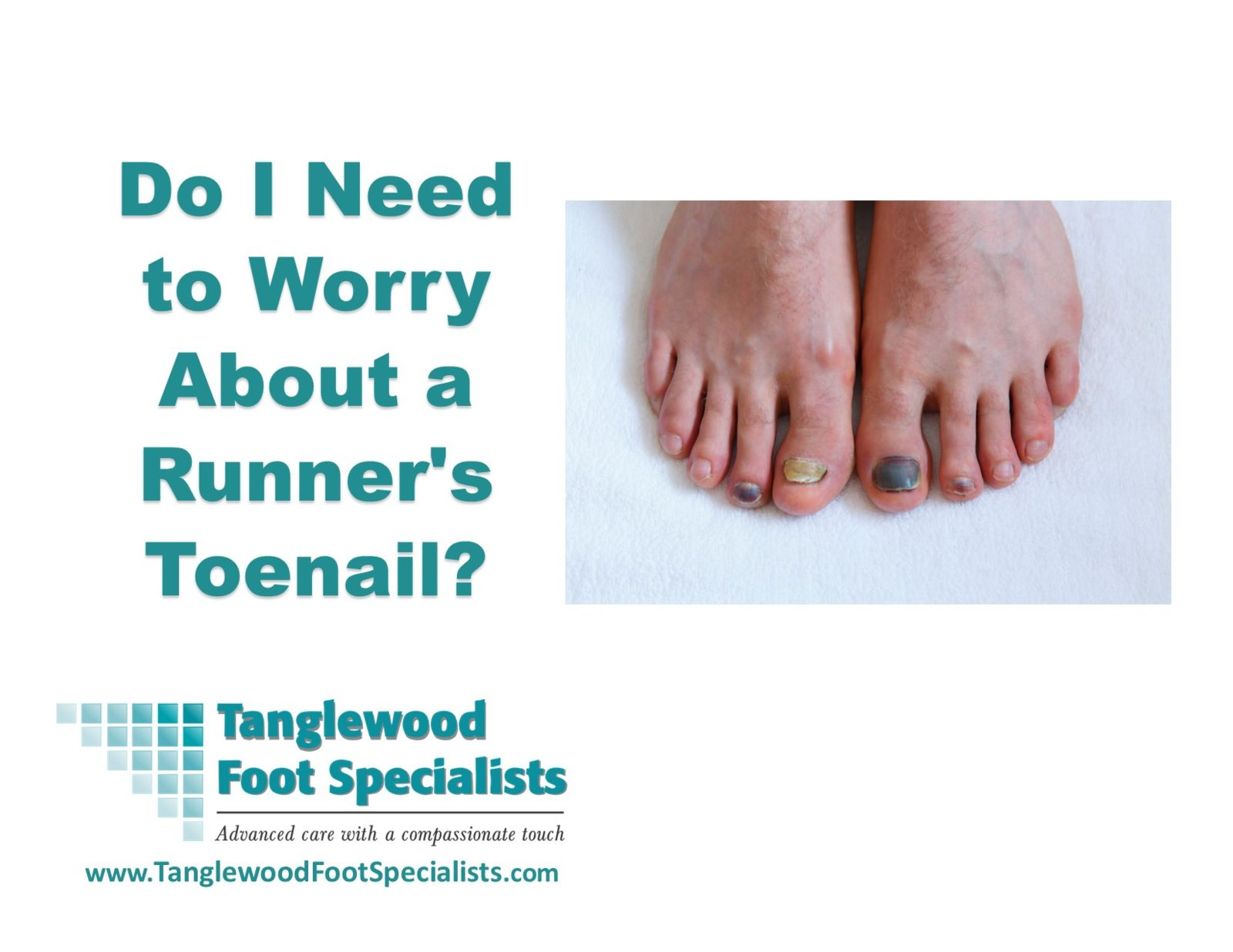 Do I Need to Worry About a Runner's Toenail?