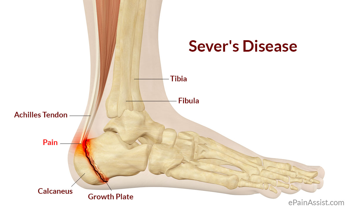 Houston podiatrist treats heel pain from Sever's disease