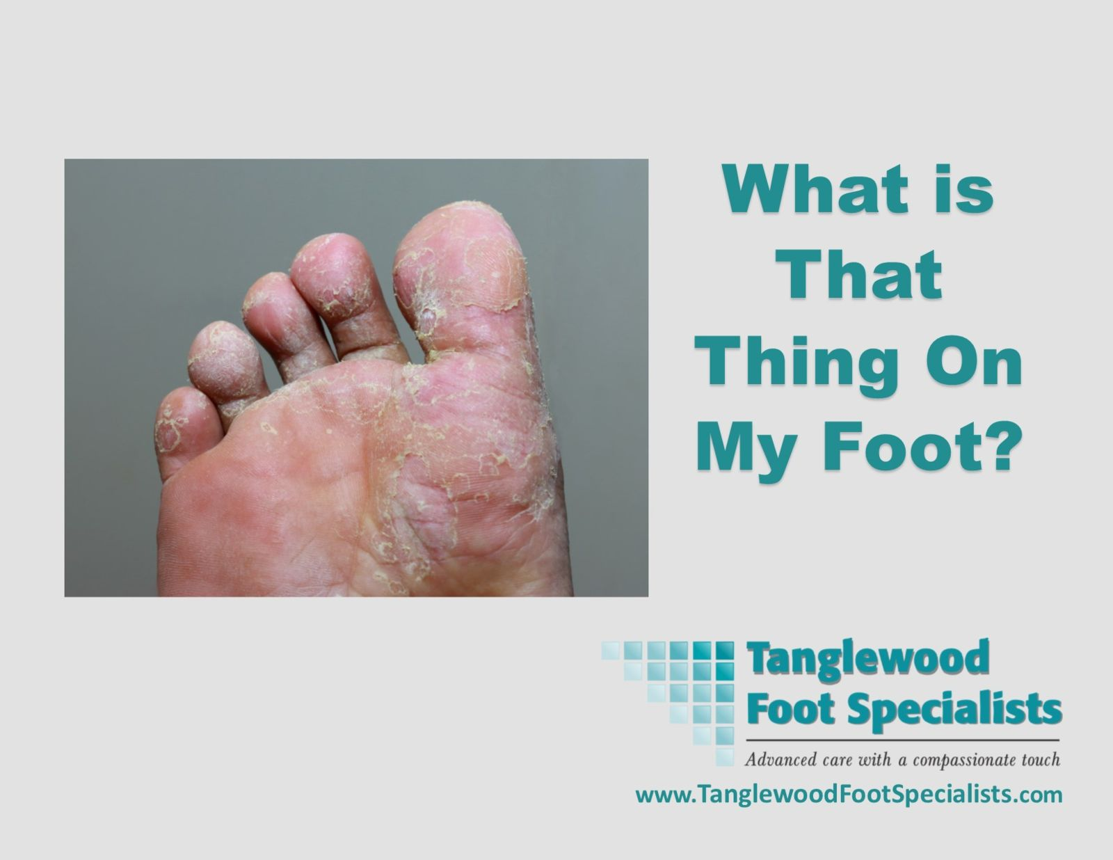 Skin issues of the foot