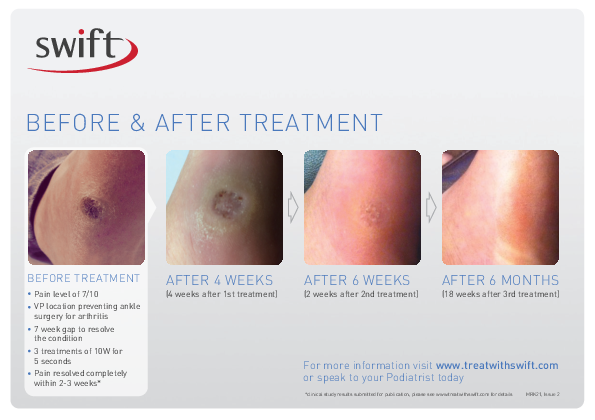 Swift Treatment for Plantar Warts and Verruca Results