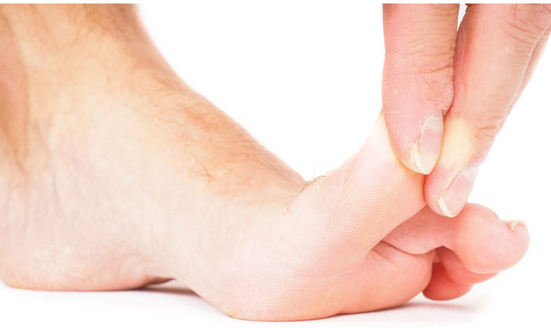 Turf toe limits your toe mobility, something we check for in our office exam