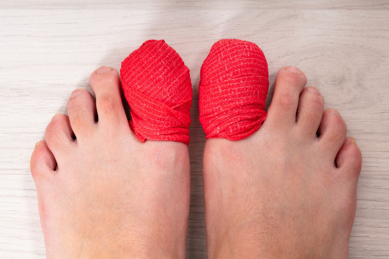 runners toenails are an injury caused by stress