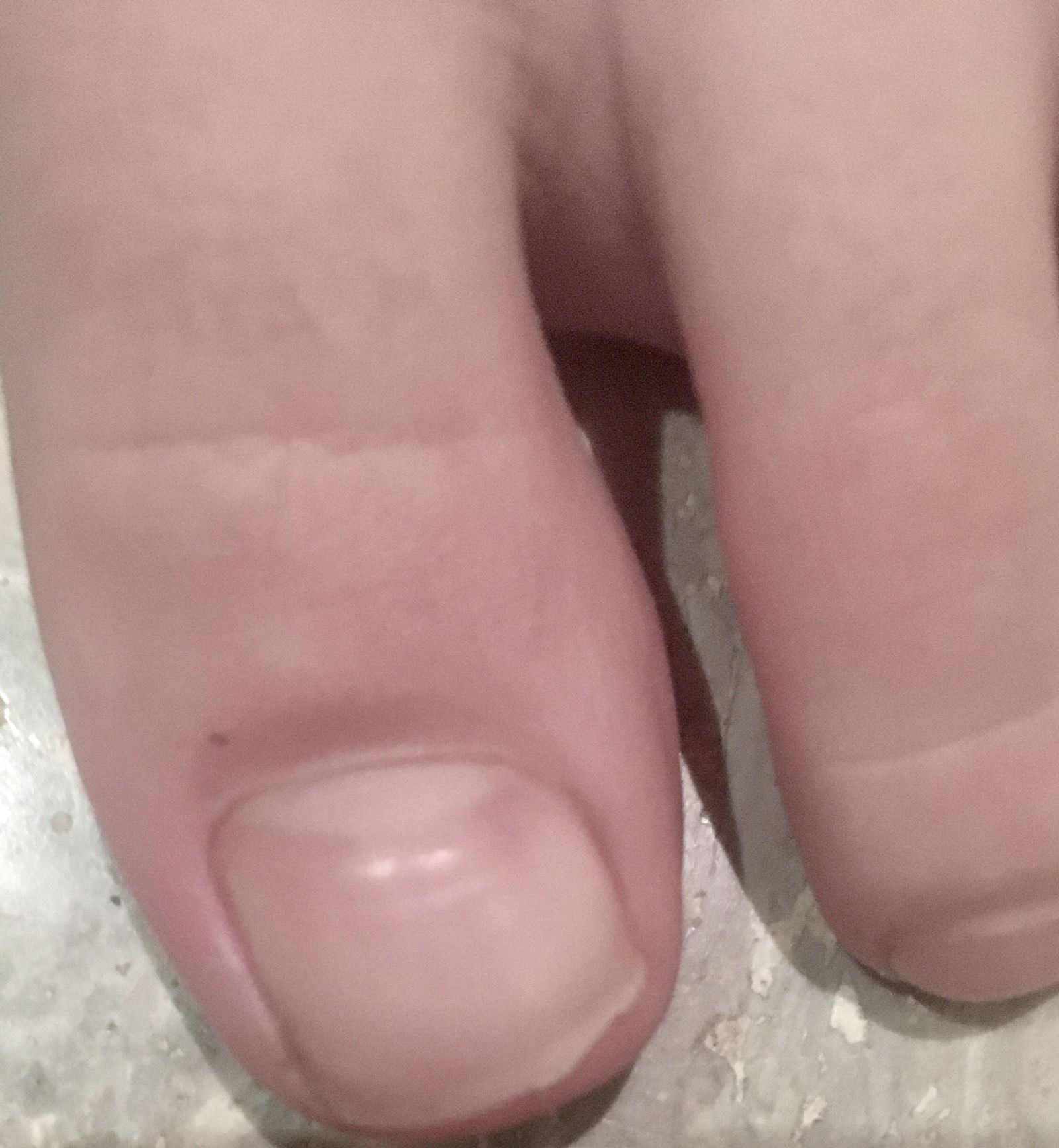 Five days later, the toe is markedly less red and the edge of the nail is visible again