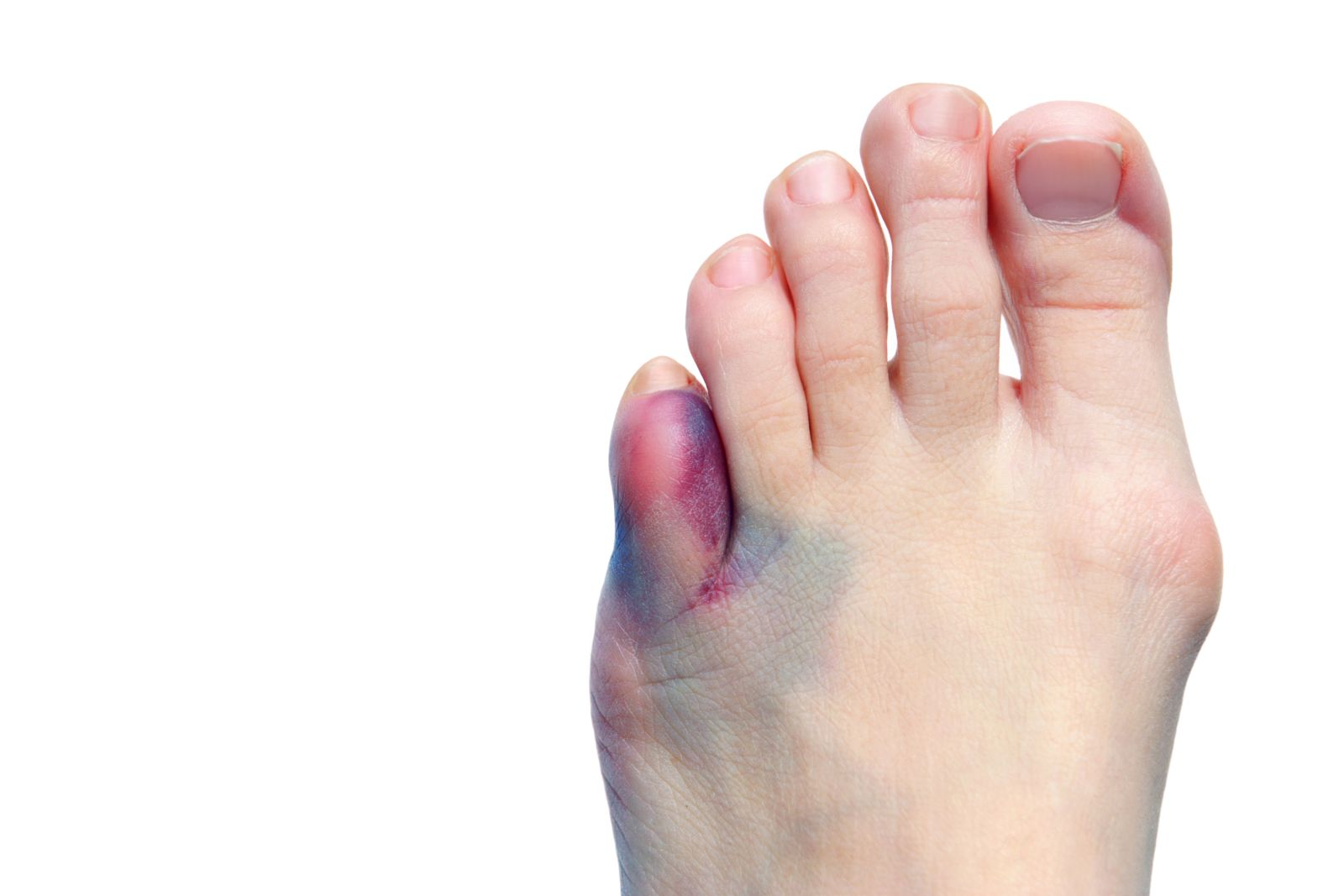 Houston podiatrist discusses Bethenny Frankel's broken toe