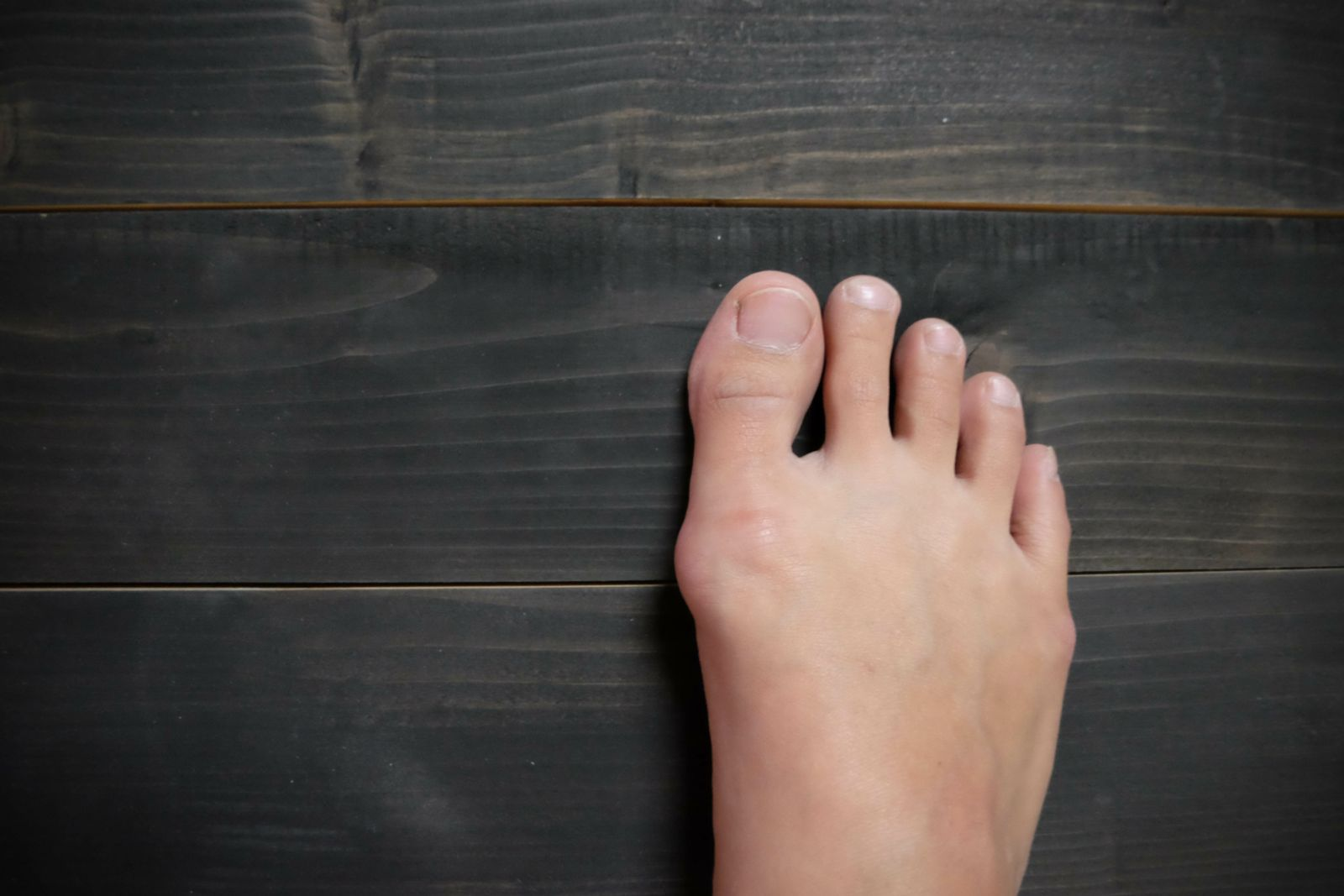 Bunions and tailor's bunion cause pain in foot