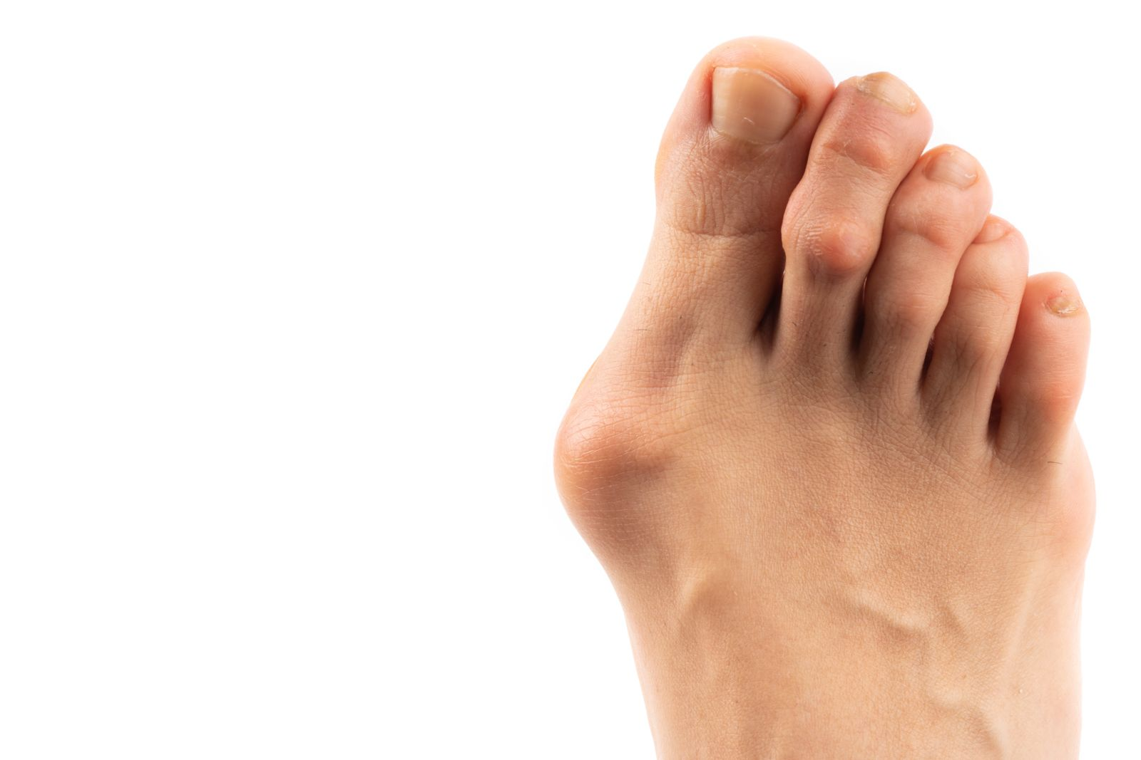 Bunions this large will need more attention than a dash of cooking fat to keep you walking comfortably.