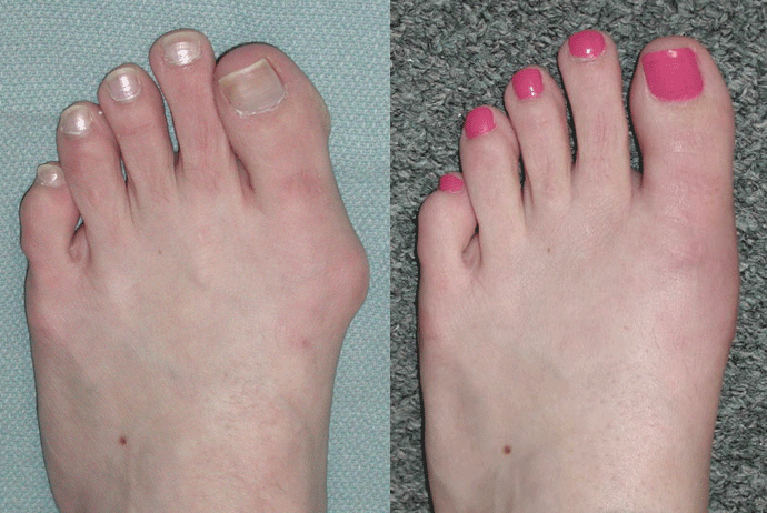 Houston podiatrist uses bunion surgery to correct bunions