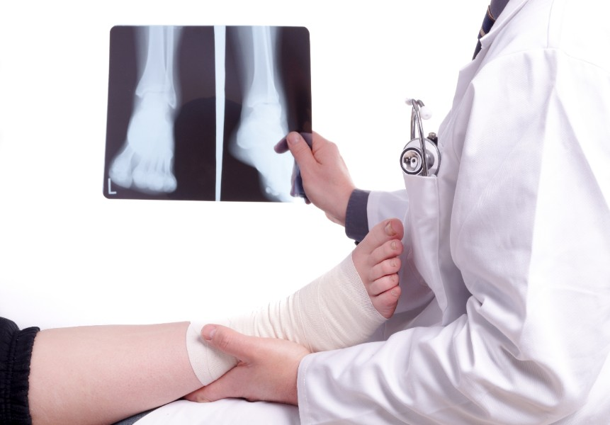Only X-rays can diagnose a foot fracture, but you can get those X-rays in my office and avoid a trip to the ER