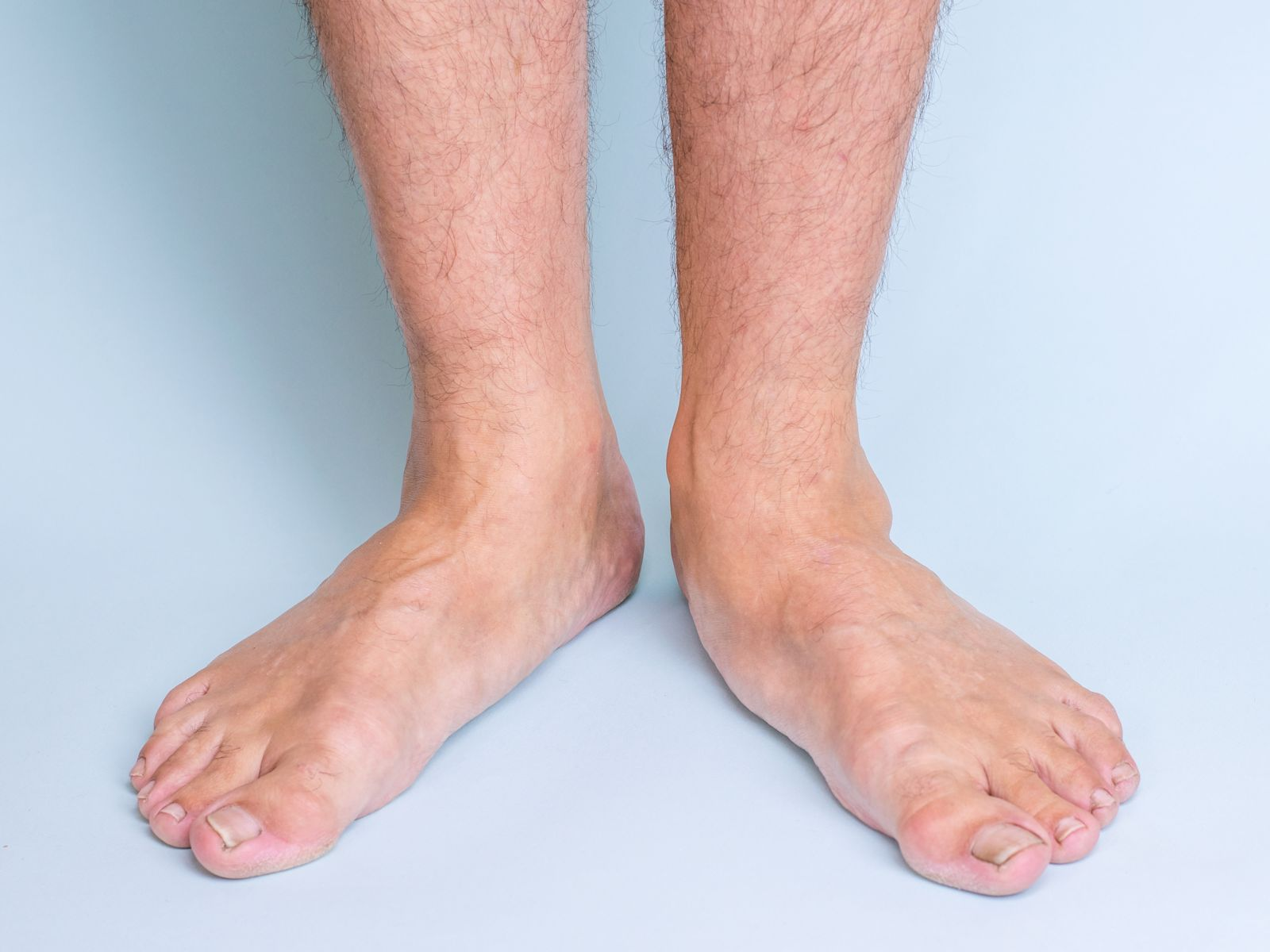 Houston podiatrist treats Flat feet