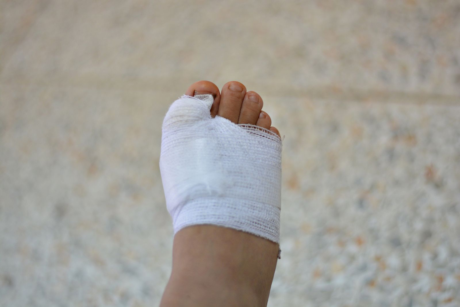 If you choose bone spur surgery, we'll have to wrap your foot with a surgical dressing