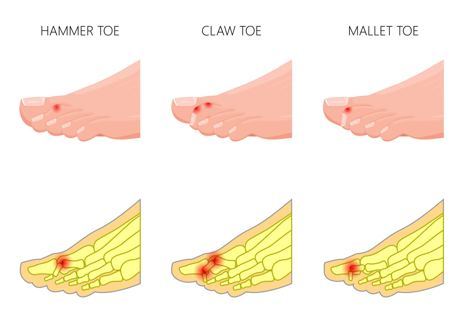 Houston podiatrist treats hammer toe, mallet toe, and claw toe