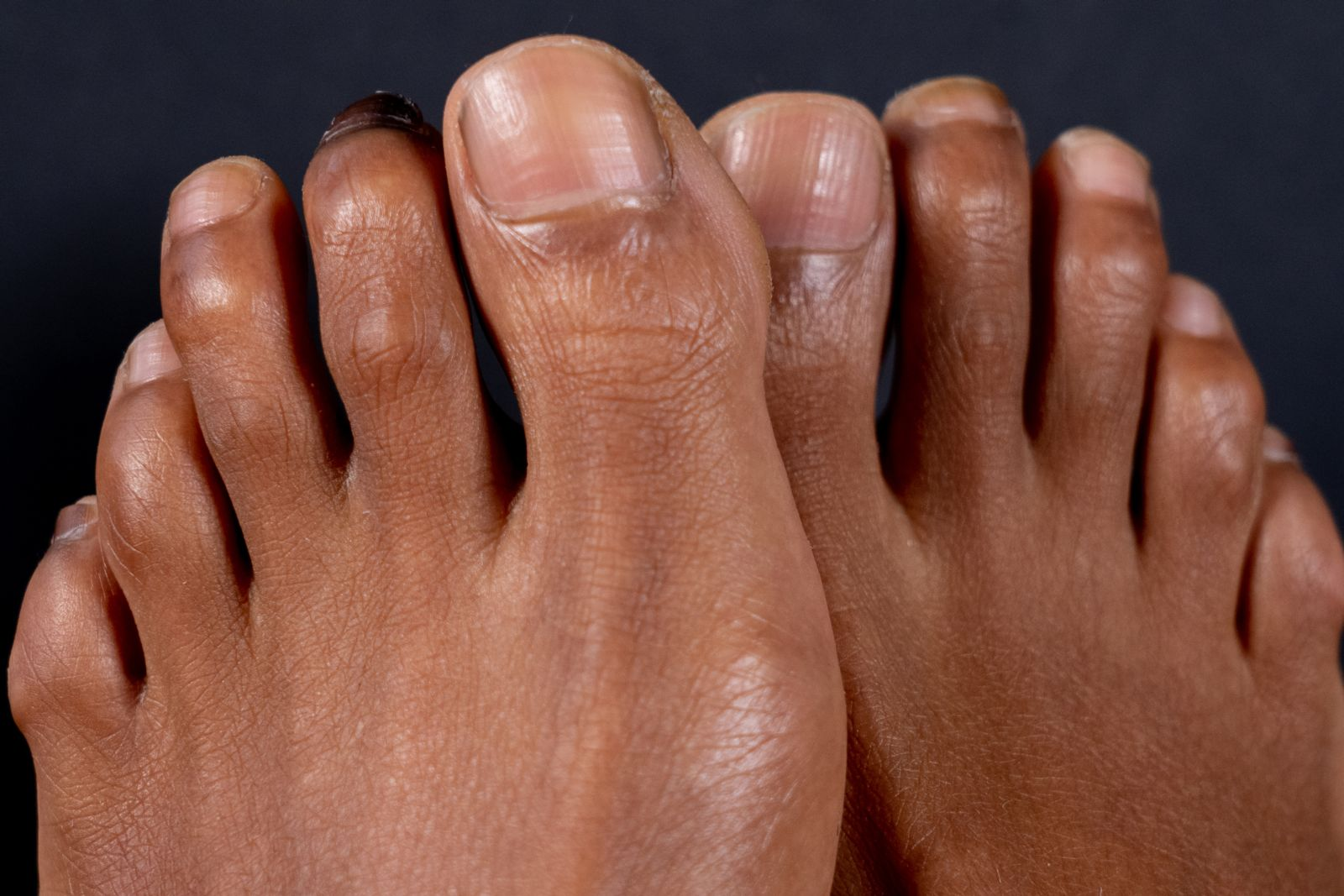 If hammertoes cause corns, you'll need to treat them to stop corns from returning