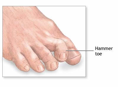 Houston podiatrist treats painful hammer toes