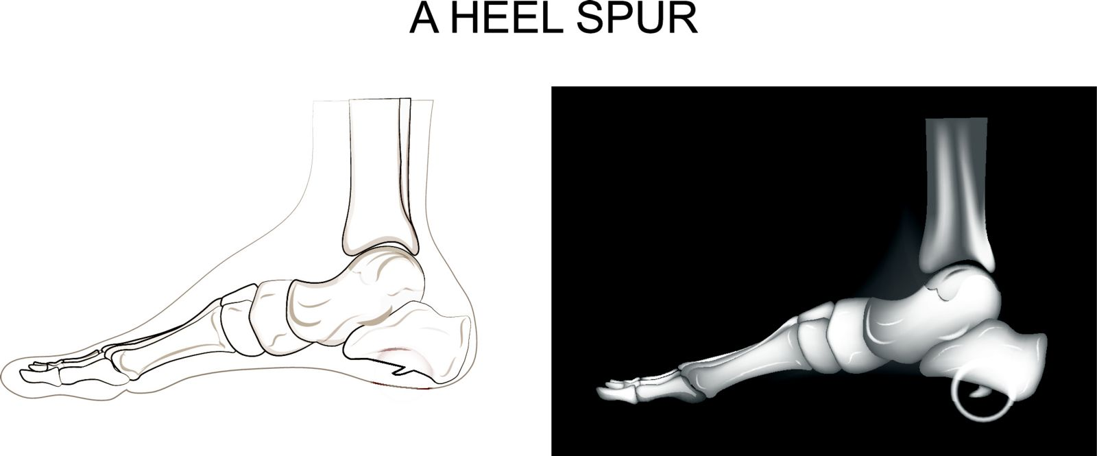 Plantar fasciitis often involves a heel spur with Houston podiatry