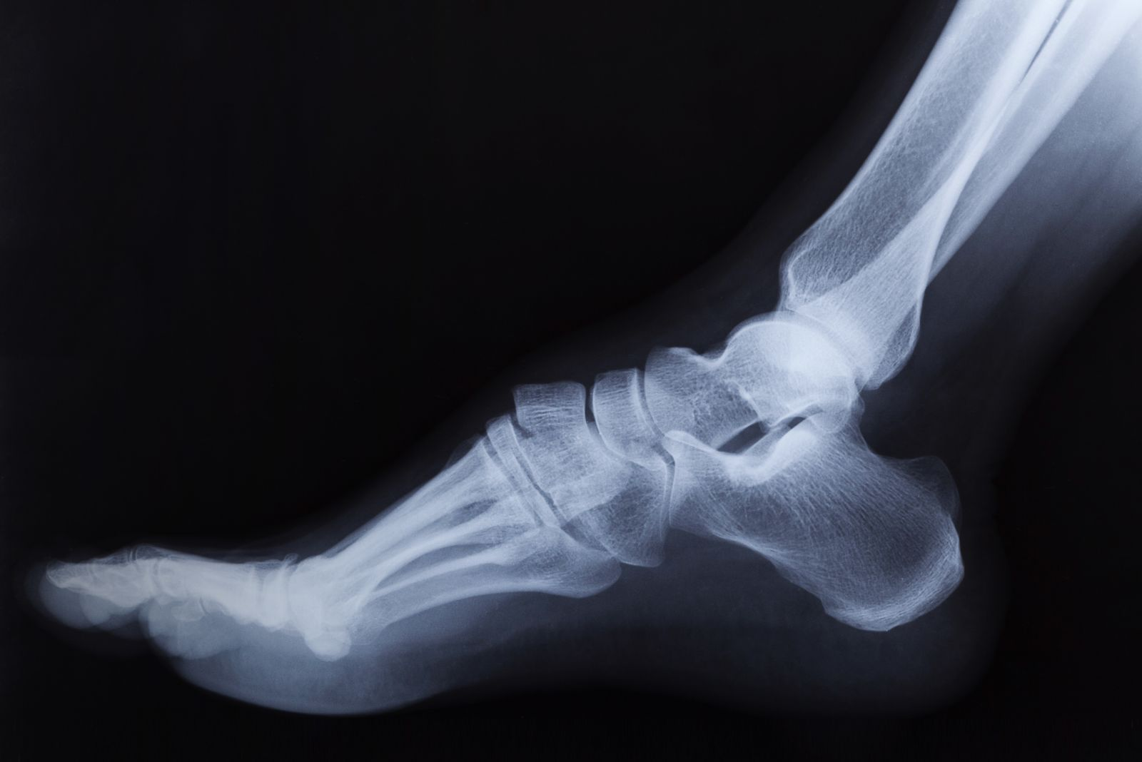 Houston podiatrist uses Digital X-ray to determine the cause of your heel pain