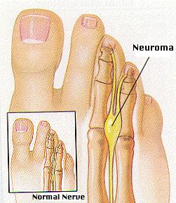 Stump neuroma complication of morton's neuroma surgery in Houston
