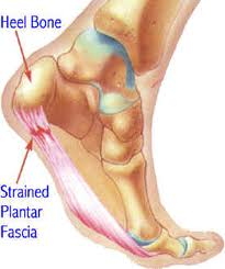 Houston podiatrist treats plantar fasciitis causing heel pain