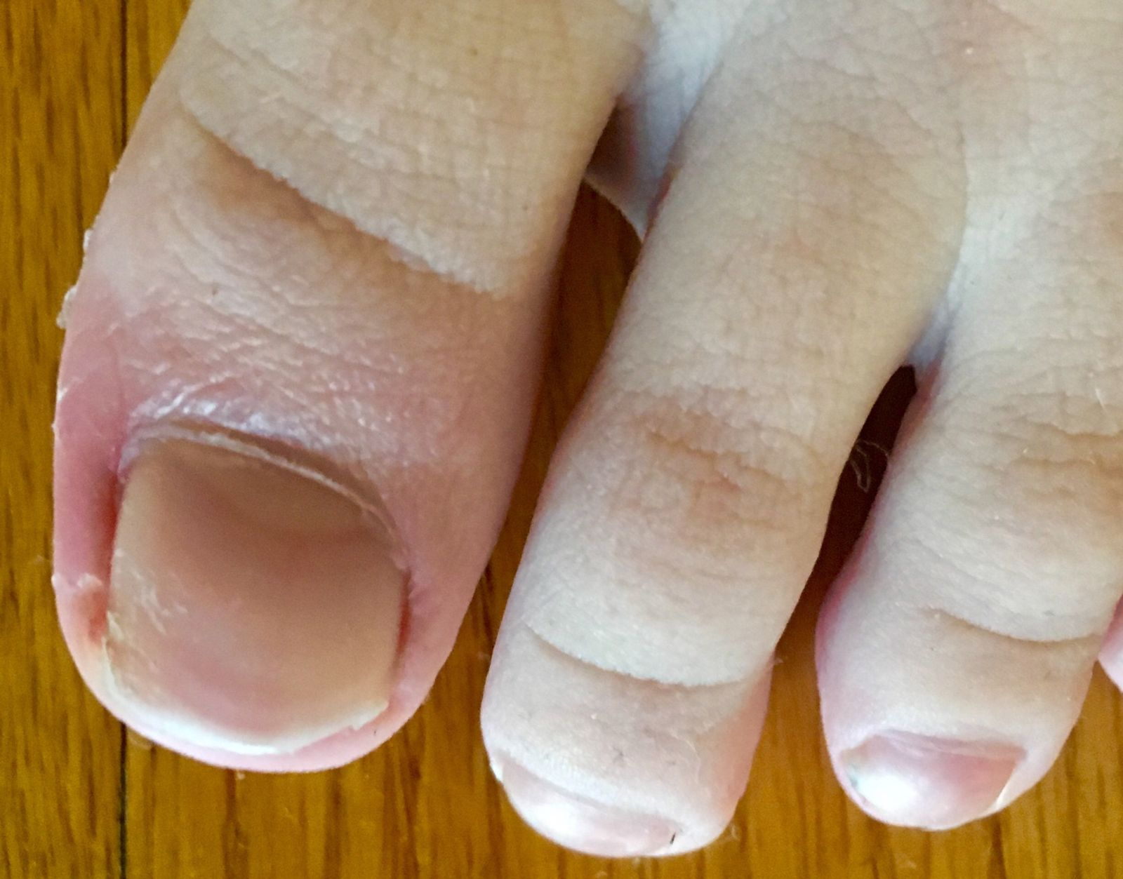 Note the redness and turned in nail on this little boy's toe: classic ingrown toenail symptoms