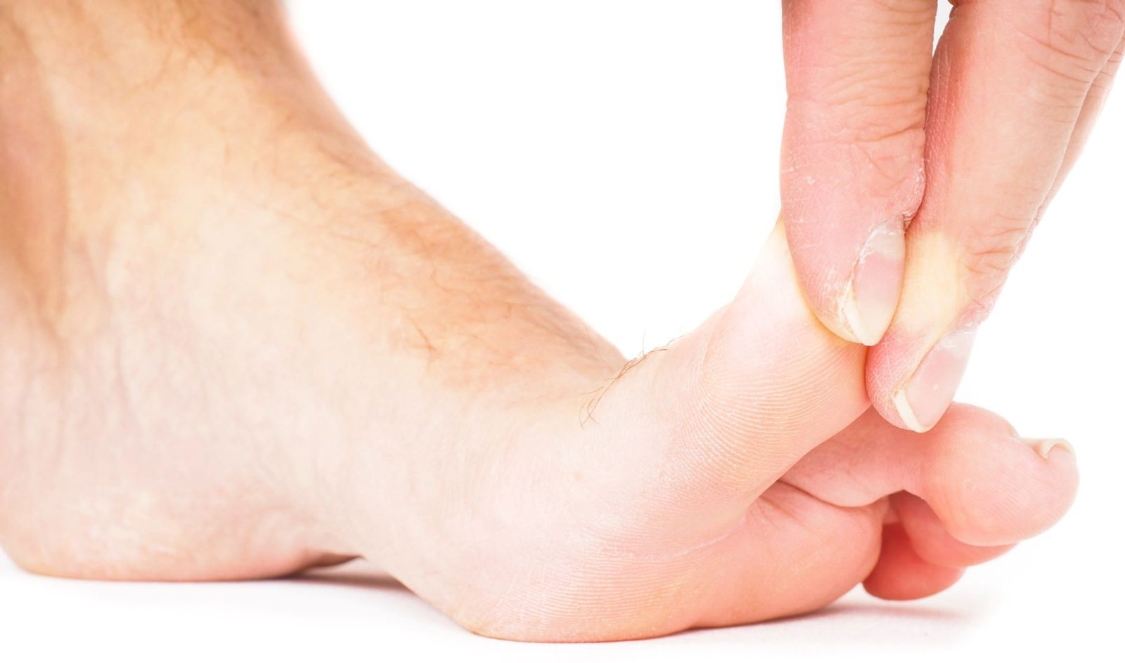 Called a Morton's toe, you may experience discomfort when your second toe is longer than your first.