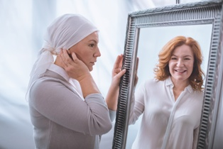 Woman With Hair Loss Looking into a Mirror