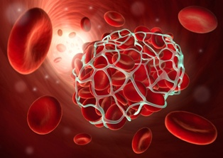 Microscopic View of a Blood Clot Forming