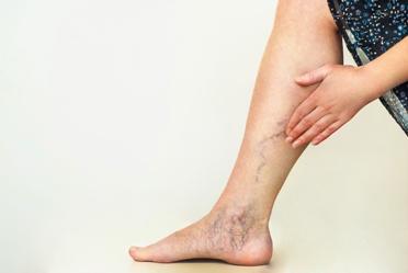 Deep Vein Thrombosis in a Patients Leg