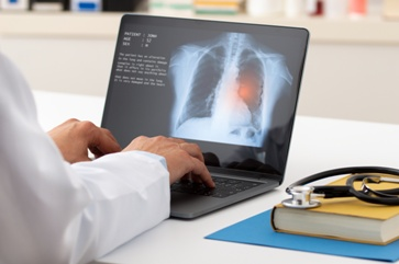 Doctor Looking at an Emphysema Scan Report