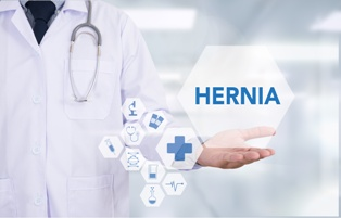Doctor Presenting Hernia Information